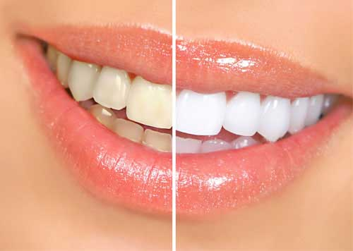 Teeth Whitening in Lucknow